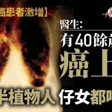 【肺癌】中年新症15年增一半 醫生指密室易積氡氣長期吸入可致癌 (香港01  5/5/2018)